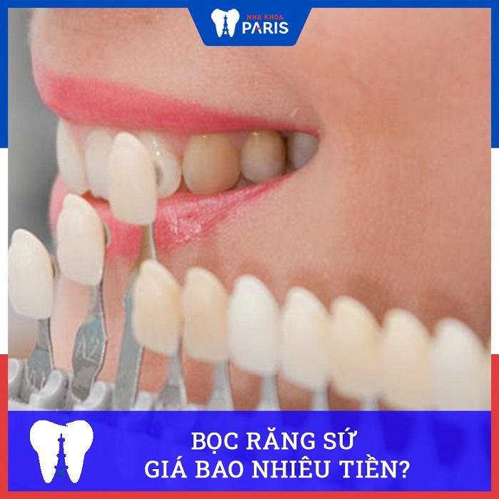 . Bọc răng sứ giá bao nhiêu