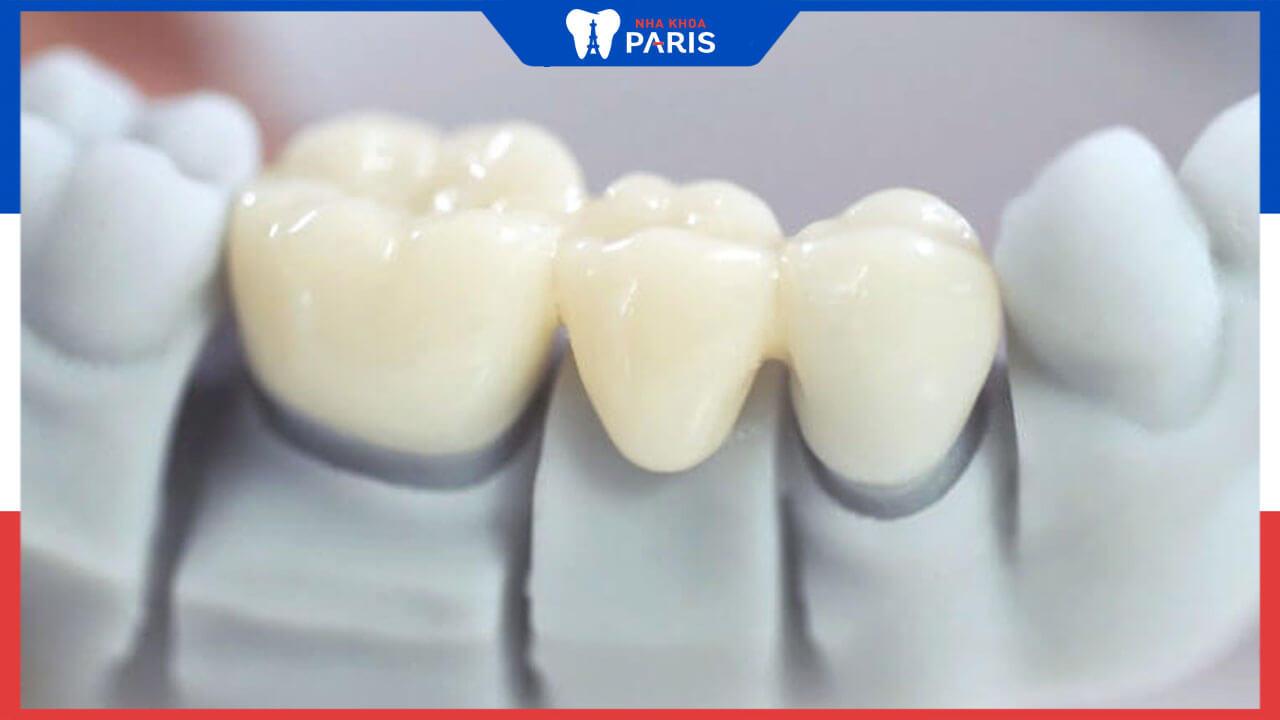 Răng sứ toàn sứ giá bao nhiêu tiền? Bảng giá răng sứ mới cập nhật