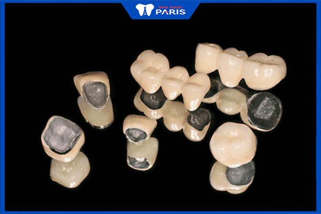 Bọc răng sứ kim loại gồm những loại nào