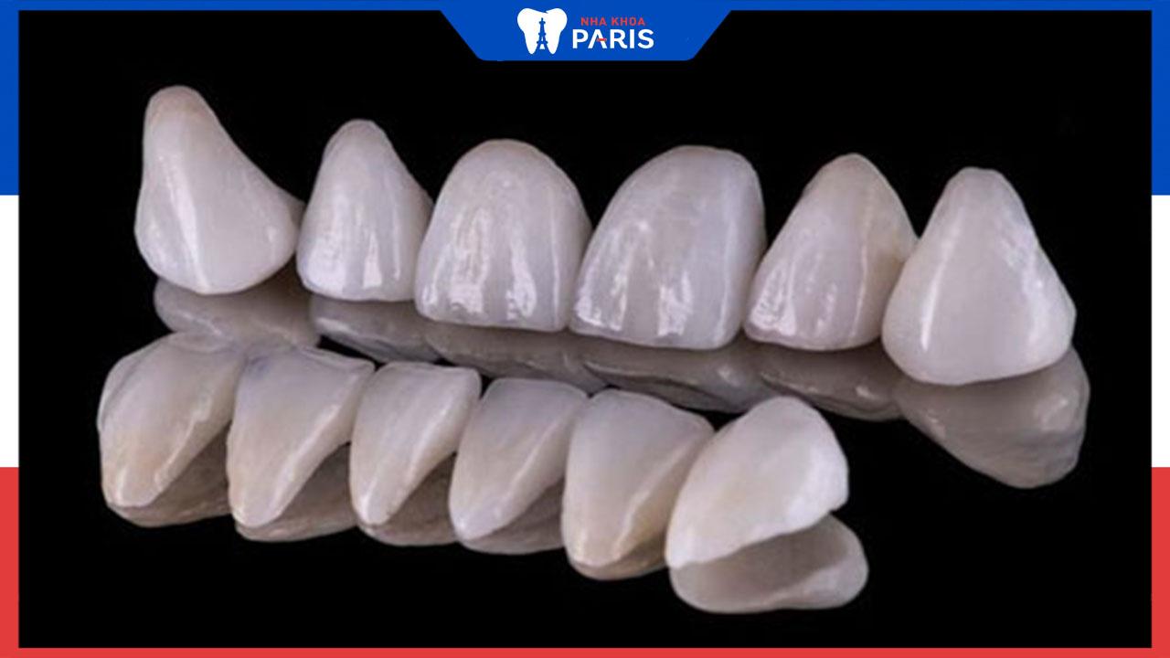 Bọc răng sứ nguyên hàm bao nhiêu tiền- Bảng giá chi tiết