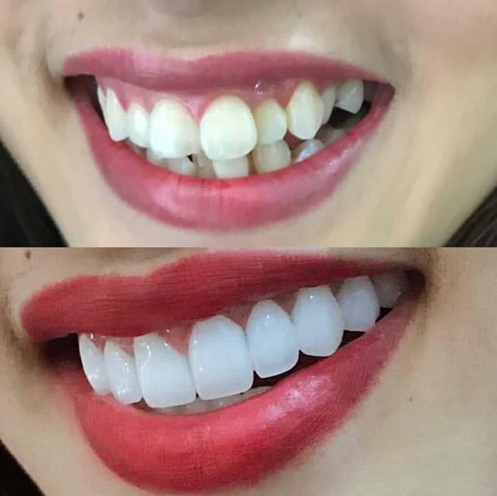 Chi phí bọc răng sứ titan