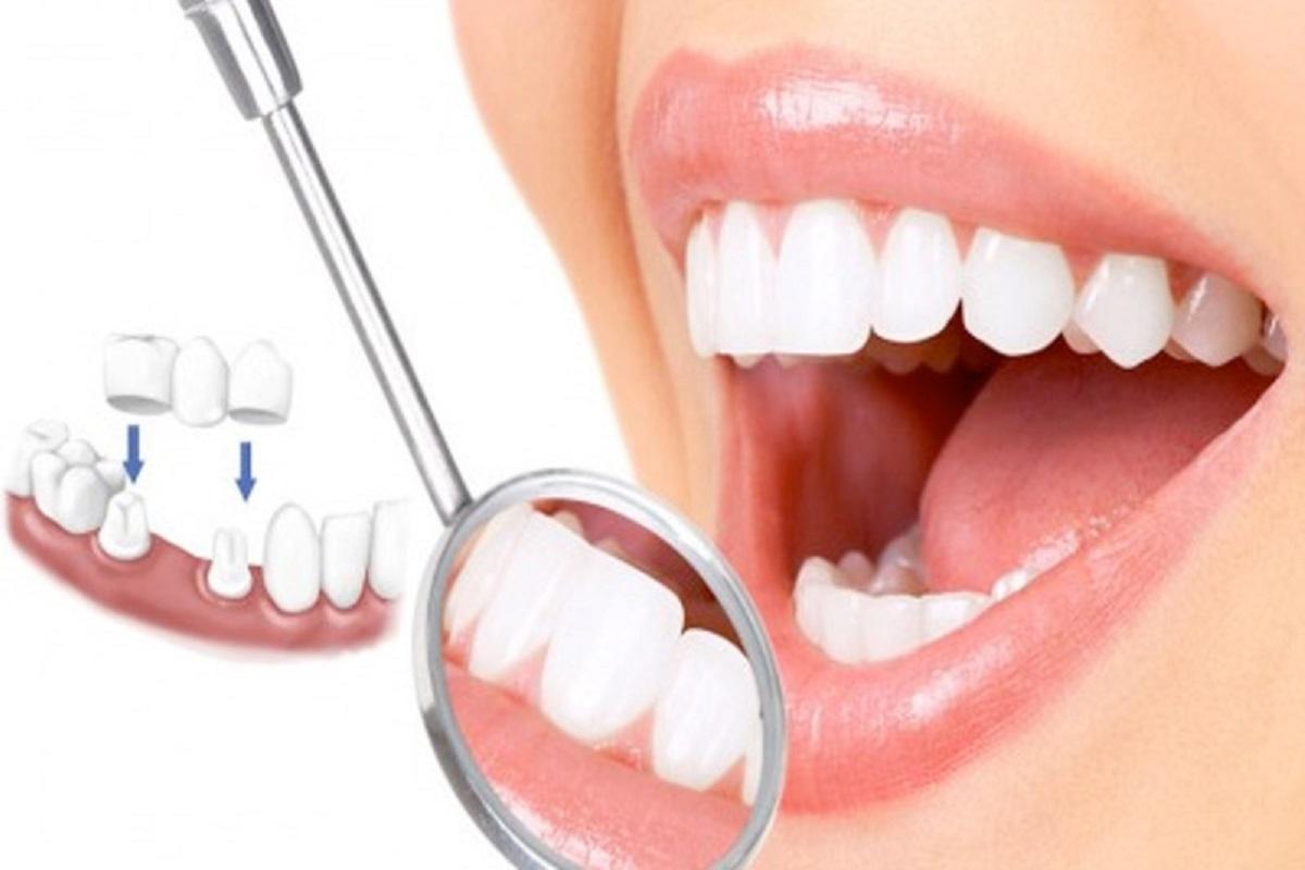 Bọc răng sứ thẩm mỹ bao nhiêu tiền tất cả? Bảng giá răng sứ chi tiết nhất