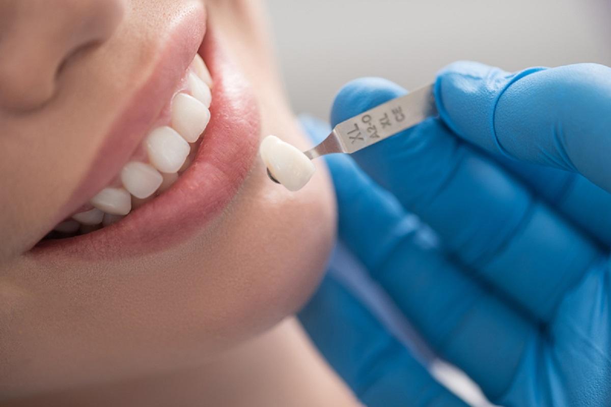 Bọc răng sứ thẩm mỹ như thế nào để an toàn và hiệu quả