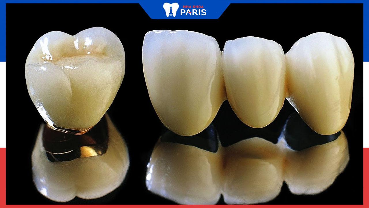Bọc răng sứ titan giá bao nhiêu? Có nên bọc giá rẻ không