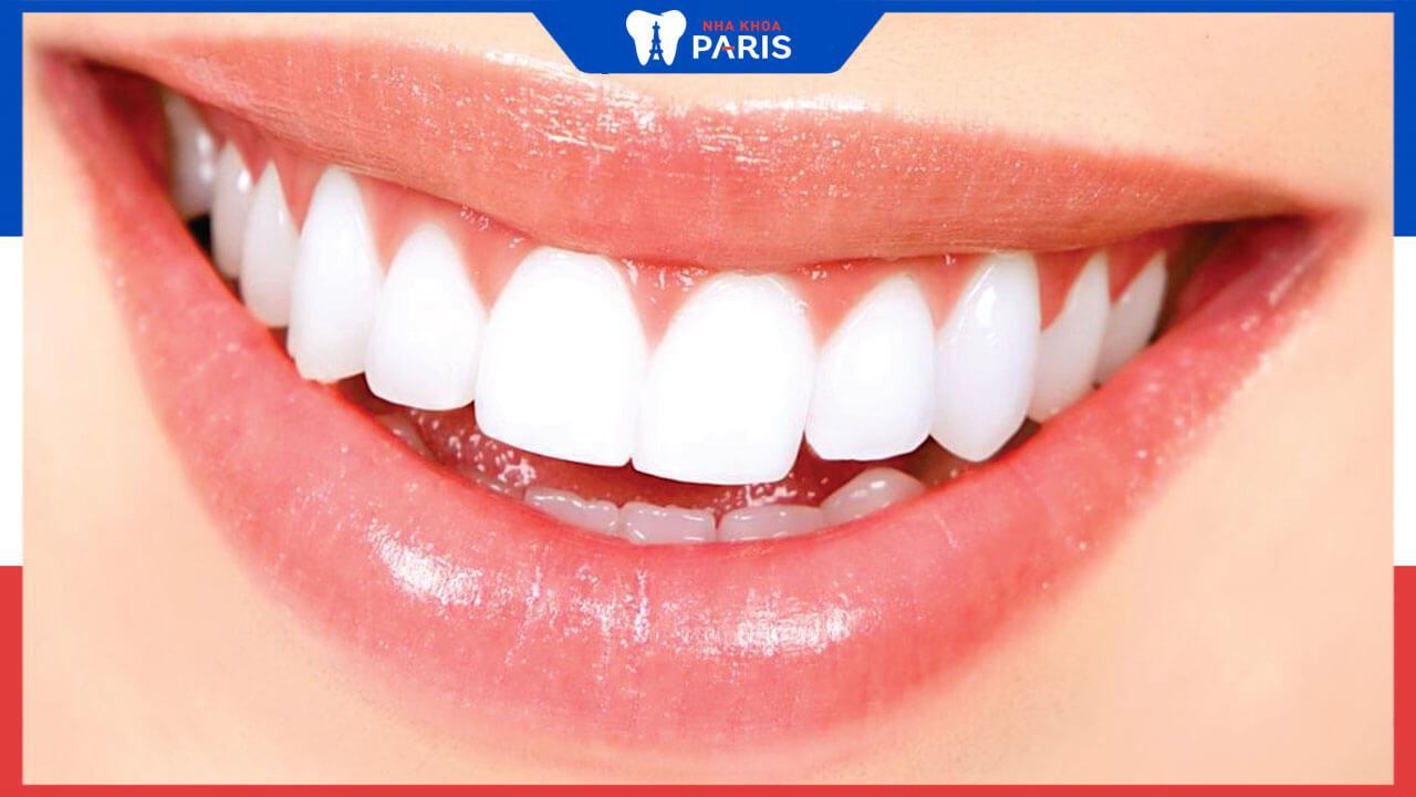 Bọc răng sứ toàn bộ hàm có ưu điểm gì, lưu ý khi bọc sứ