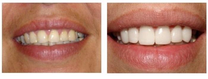 Nên chọn răng sứ nào để bọc răng