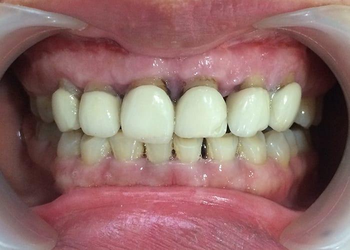Bọc răng sứ 16 răng là gì