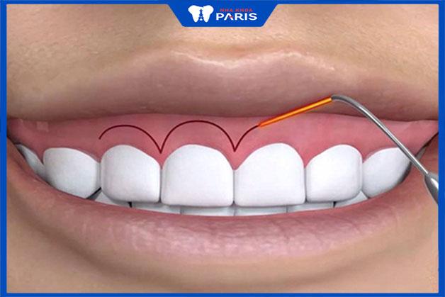 Phẫu thuật cười hở lợi diễn ra như thế nào