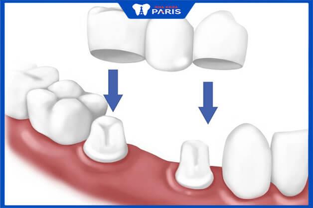 Quy trình thực hiện cầu răng sứ kim loại