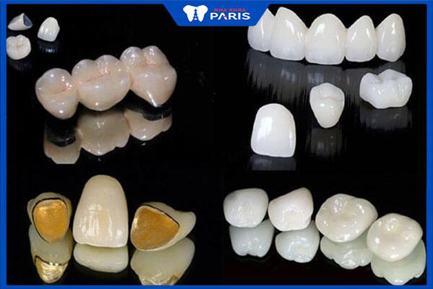 Các loại răng sứ giá rẻ trên thị trường hiện nay