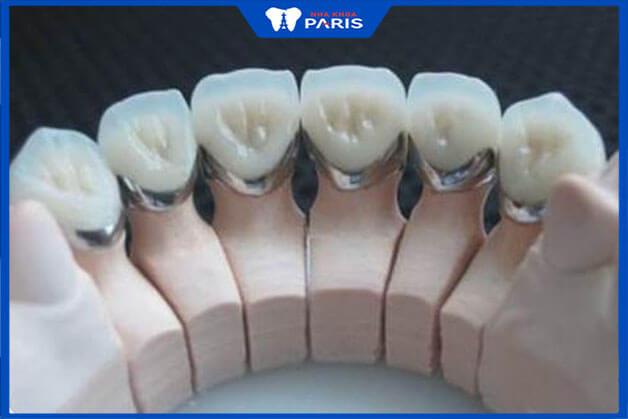 Các câu hỏi thường gặp khi phục hình răng sứ Titan