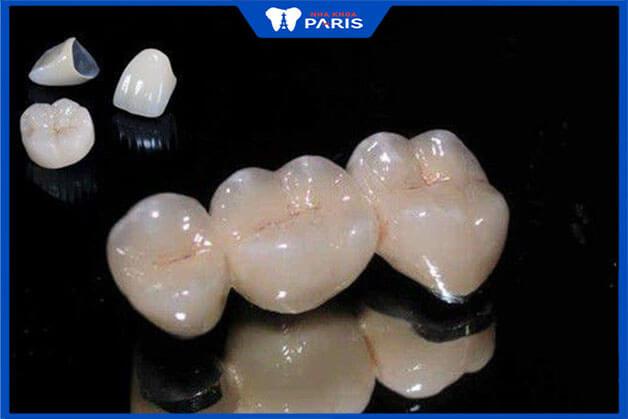 Cầu răng sứ kim loại là gì