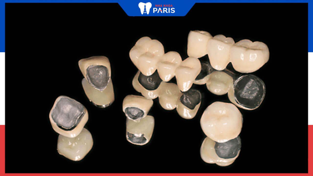 Cầu răng sứ kim loại là gì, ưu nhược điểm như thế nào?