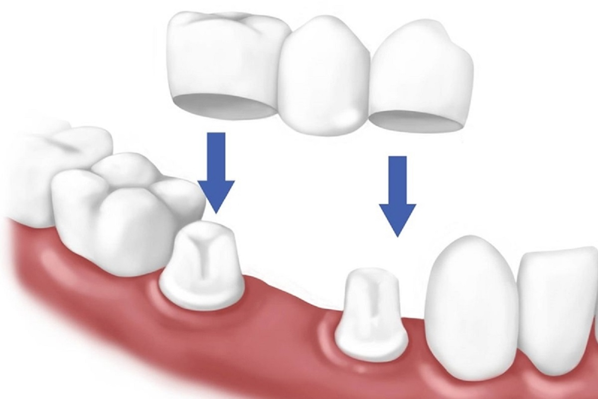 Cầu răng sứ là gì? Các loại cầu răng sứ được dùng phổ biến