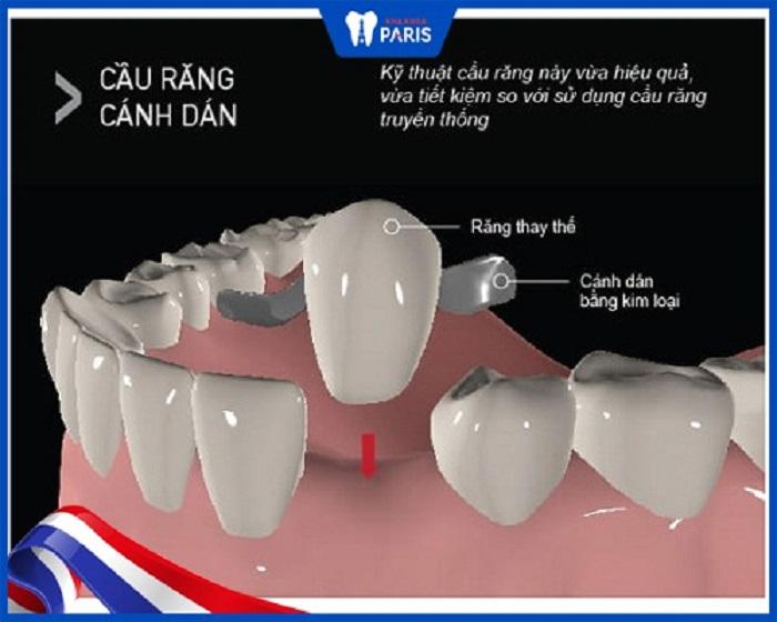 Cầu răng sứ trên trụ Implant