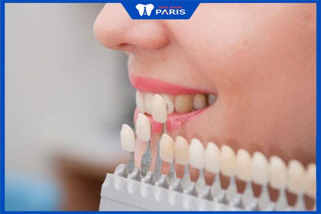 Chất lượng răng sứ
