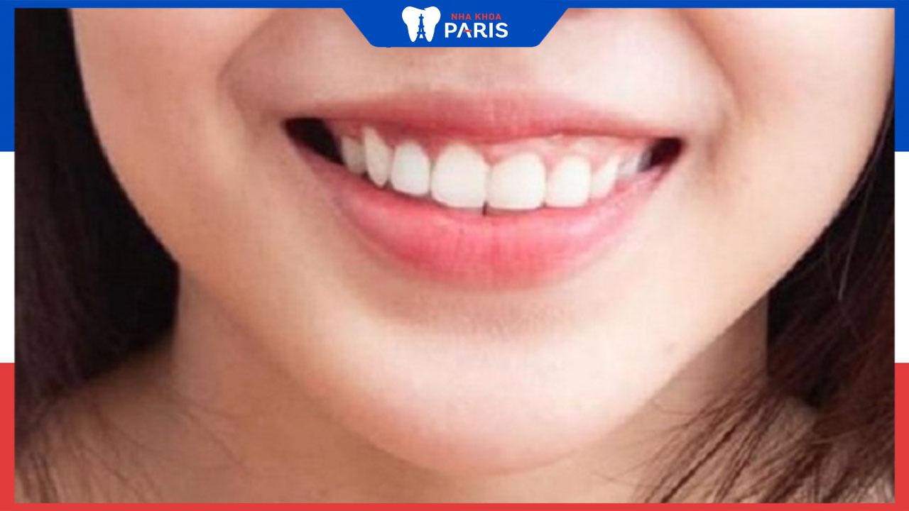 Chữa cười hở lợi hiệu quả như thế nào?
