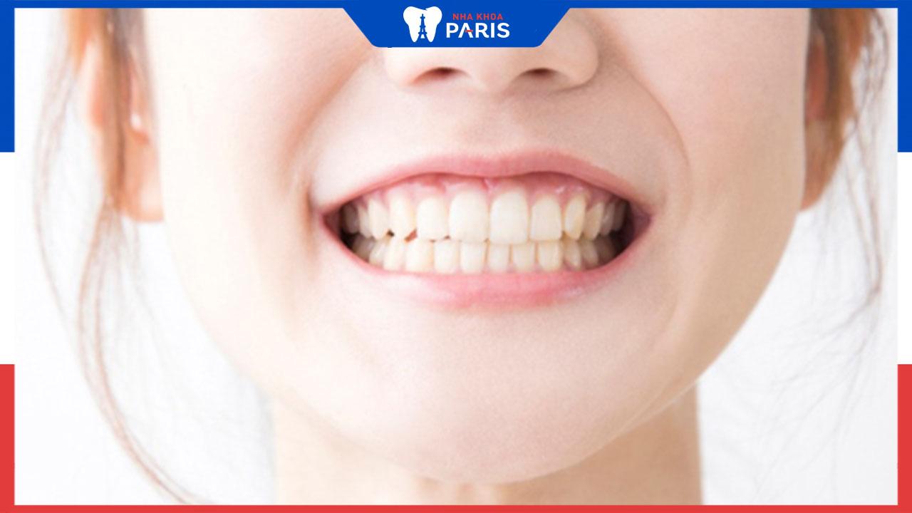 Cười hở lợi phải làm sao để điều trị an toàn