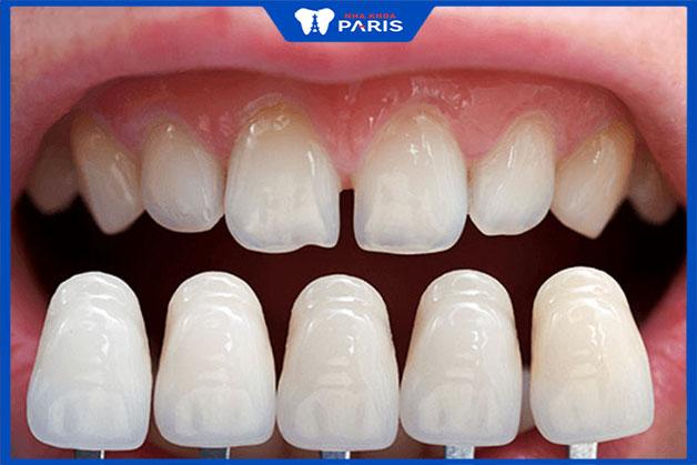 Dán răng sứ có phải mài răng không