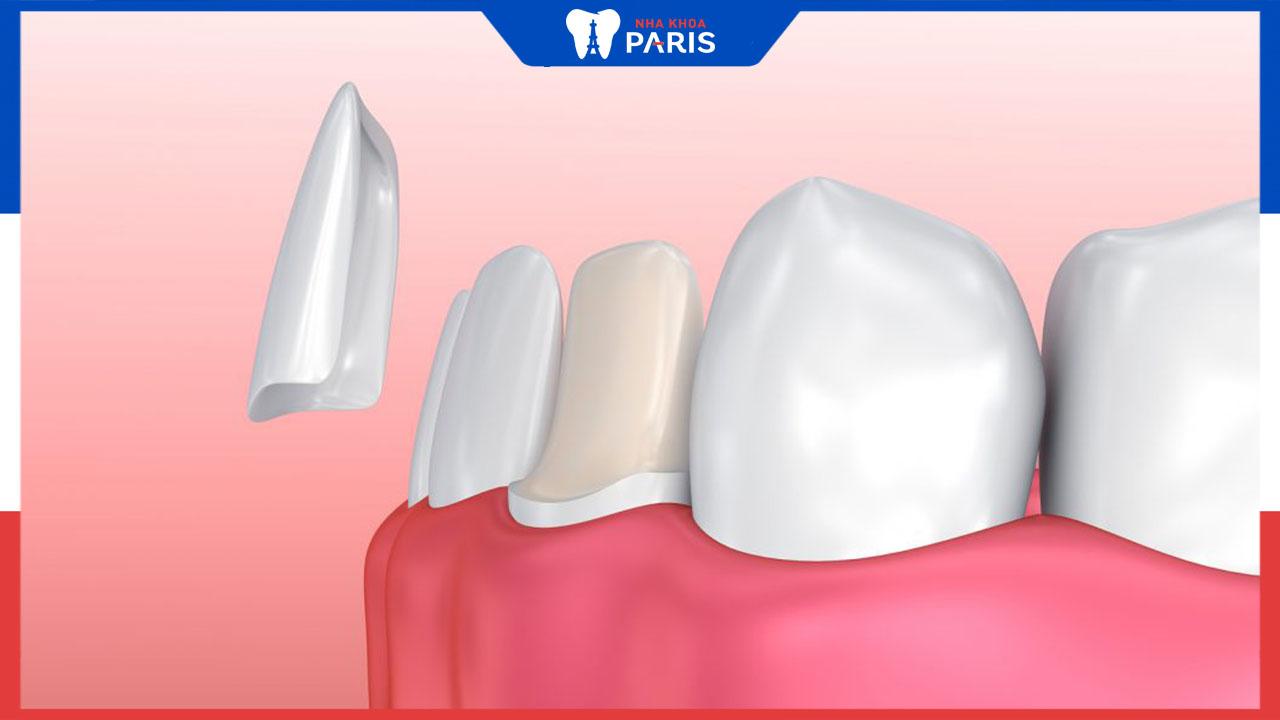 Dán răng sứ được bao lâu? Bật mí cách làm tăng tuổi thọ