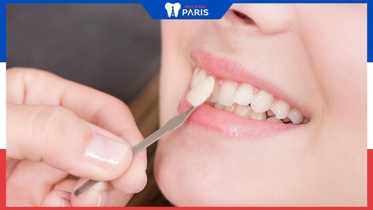 Dán răng sứ loại nào tốt nhất? Bí quyết chọn mặt dán sứ