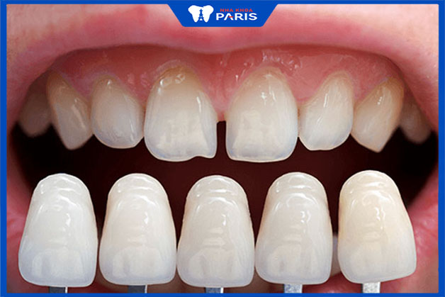 Khi dán răng sứ Veneer có phải mài răng không