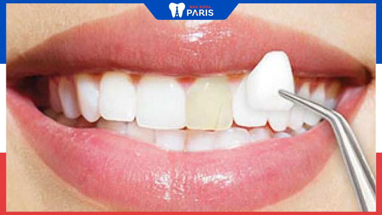 Dán Veneer răng là gì? Những lưu ý quan trọng khi dán Veneer