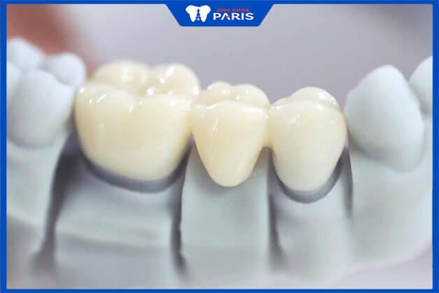 Định nghĩa về làm cầu răng sứ thẩm mỹ