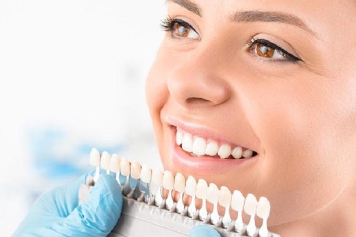 Răng sứ bị hỏng hoặc vỡ