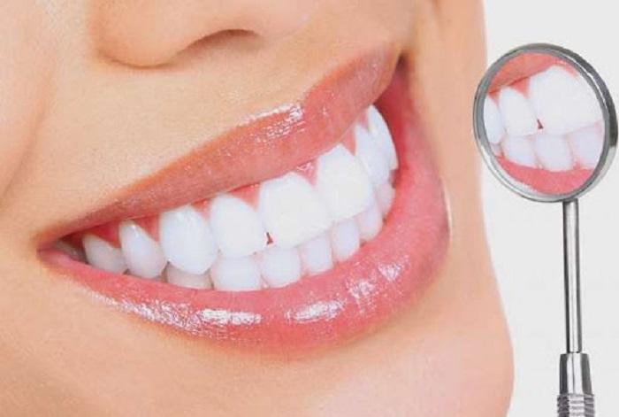 Chất liệu răng sứ được bọc