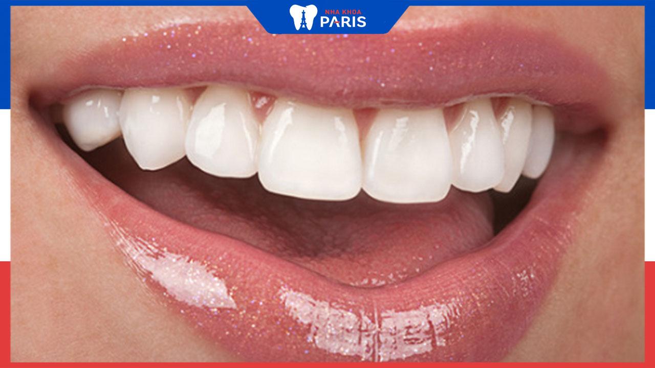 Giá hàm răng sứ bao nhiêu tiền cho nguyên 1 hàm?