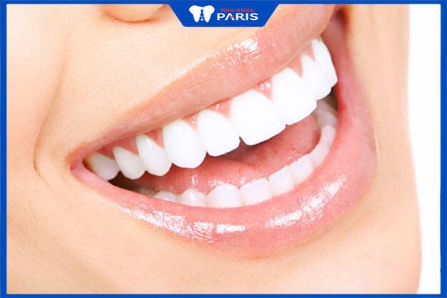 Giới thiệu về kỹ thuật bọc răng sứ không cần mài răng
