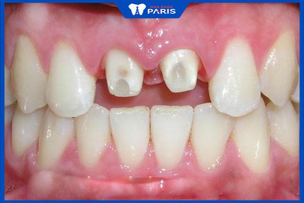 Hậu quả nguy hiểm khi làm răng sứ thẩm mỹ giá rẻ