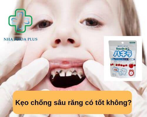 Kẹo chống sâu răng có tốt không?