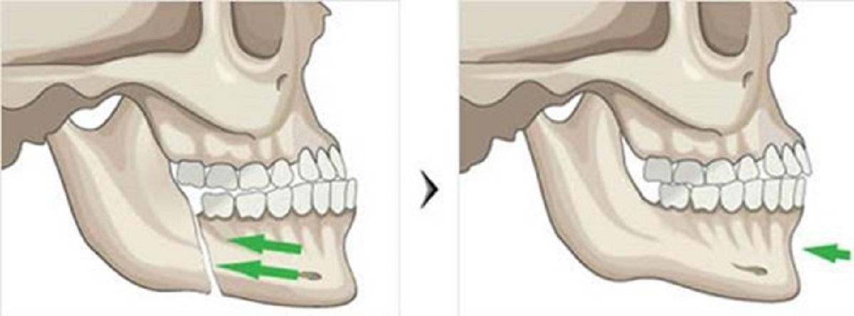Kinh nghiệm xương máu: Phẫu thuật hàm móm có đau không