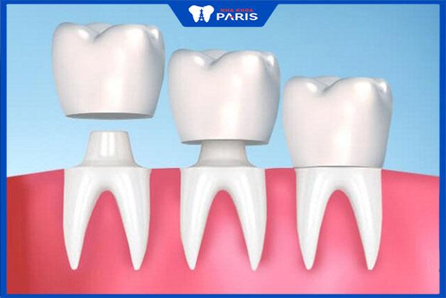 Kỹ thuật bọc răng sứ thẫm mỹ