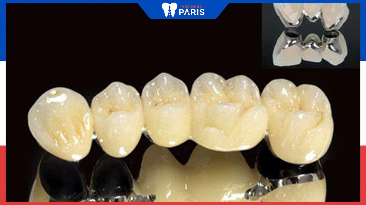 Làm răng sứ kim loại có tốt không? Có ưu nhược điểm gì