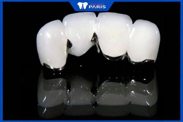 Có nên bọc răng sứ kim loại không