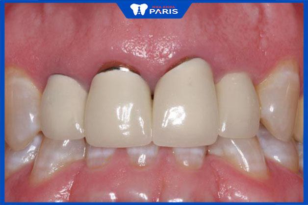 Nên bọc răng sứ kim loại ở đâu để đạt hiệu quả tốt