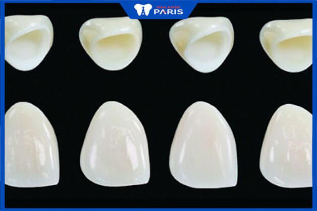 Nên dùng răng sứ kim loại hay răng sứ không kim loại