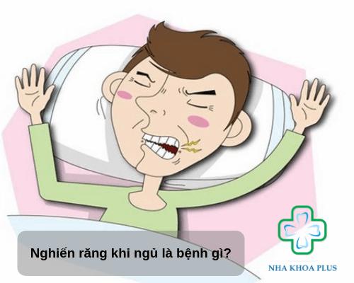 Nghiến răng khi ngủ là bệnh gì?