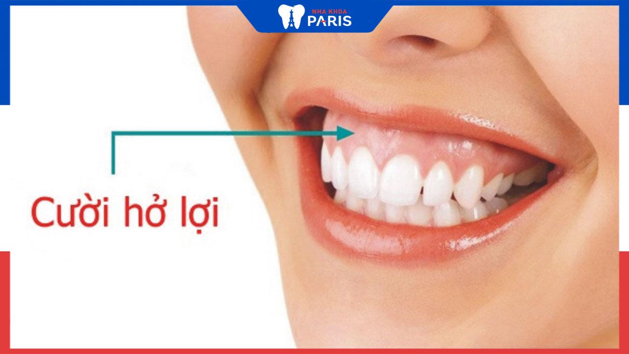 Nguyên nhân cười hở lợi và cách điều trị tương ứng?
