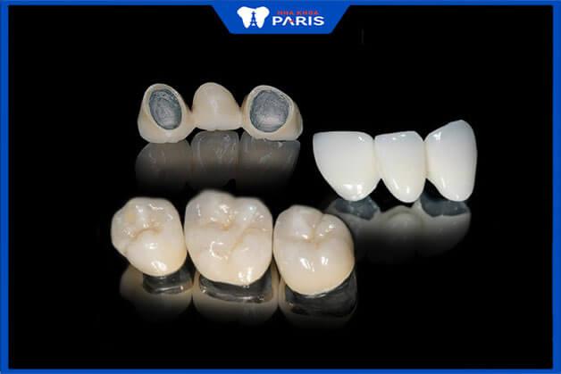 Những loại răng sứ được khách hàng ưa chuộng nhất