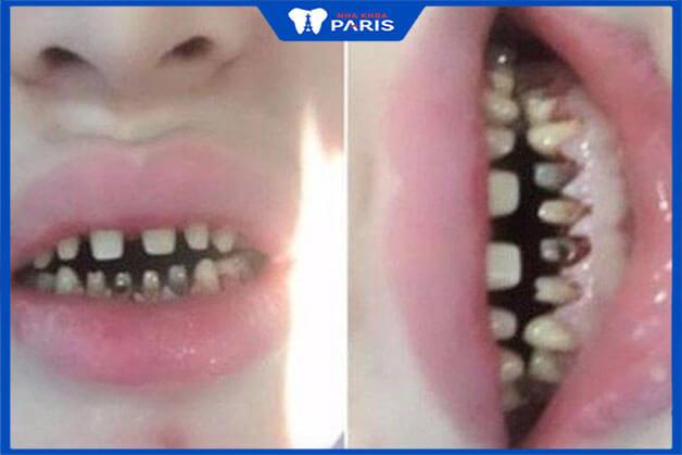 Những điều cần quan tâm khi bọc răng sứ toàn bộ
