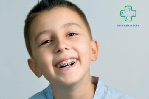 Niềng răng cho trẻ em giai đoạn vàng