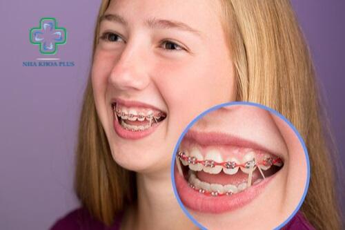 Niềng răng cho trẻ em giai đoạn trên 18 tuổi