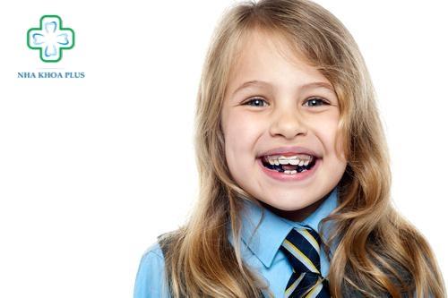 Niềng răng cho trẻ em giai đoạn tiền chỉnh nha
