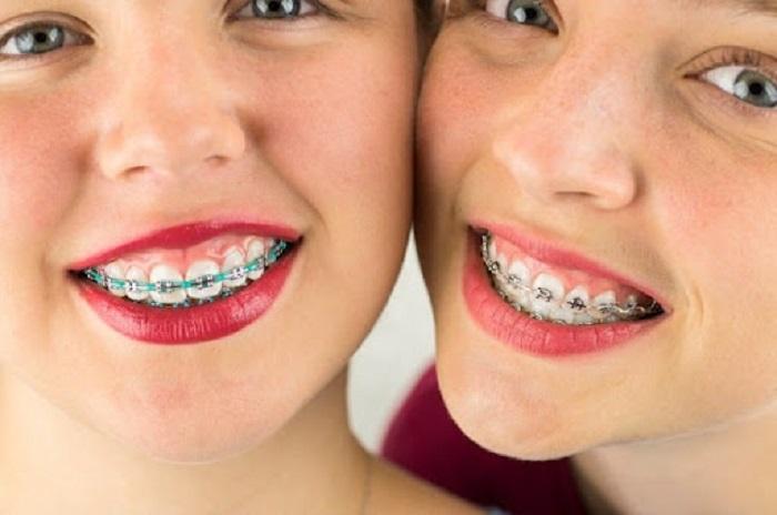 Hở lợi niềng răng là như thế nào?