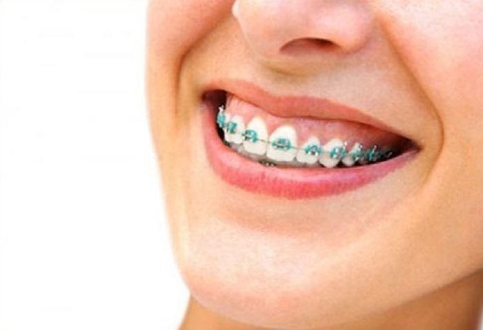 Niềng răng chữa trị cười hở lợi hiệu quả
