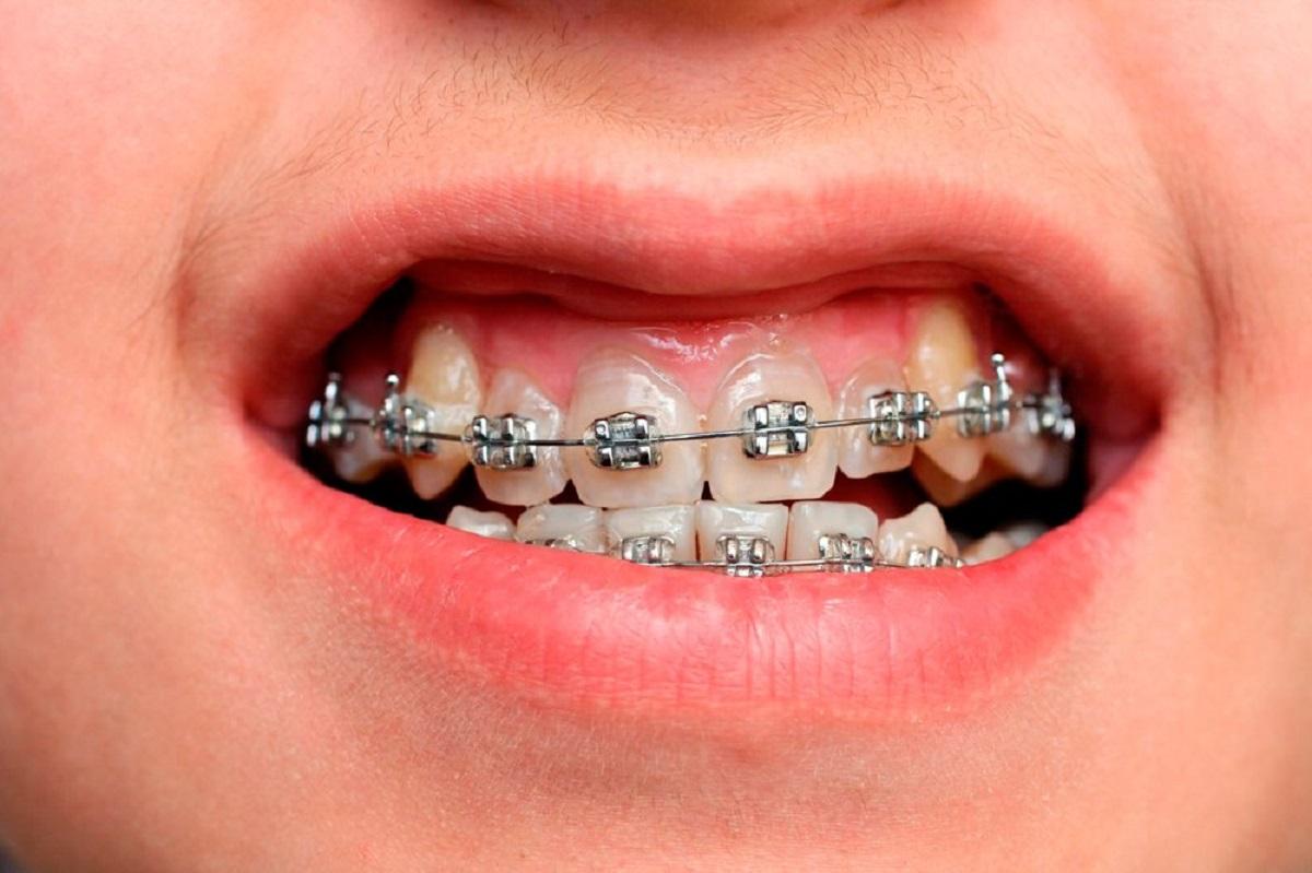Niềng răng chữa cười hở lợi hiệu quả tốt không?